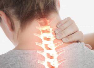 درمان درد دیسک گردن با روش های غیرجراحی