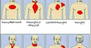 محل-درد-درهنگام-حمله-قلبی